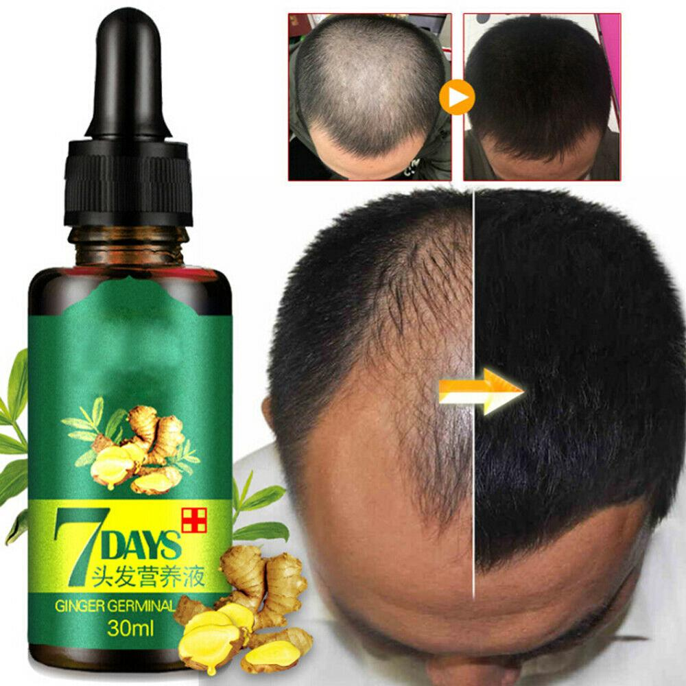 7 Days Fast Hair Growth Essence Oil Ginger Hair Growth Serum Nourishing Soften Treatment Hair Loss R