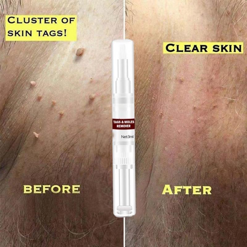 Купить с кэшбэком 3 ML Moles Remover Liquid For Family Removing Face Genital Wart Tag Dark Spot Portable Moles Wart Remover Pen