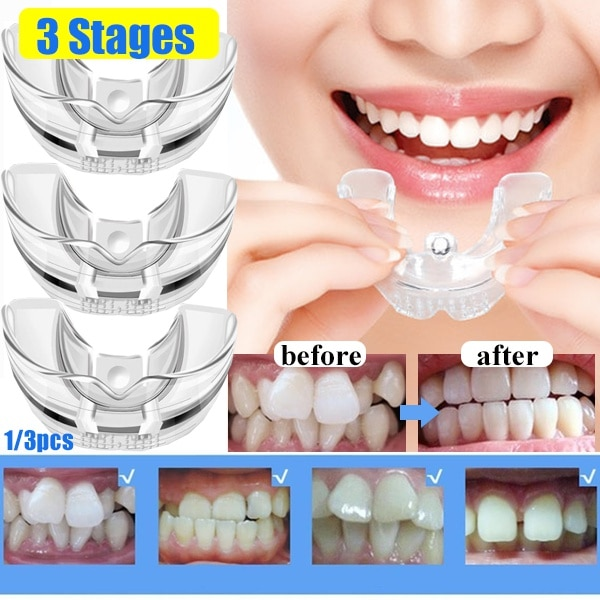 Dental Orthodontic Teeth Corrector Silicone Braces Retainer Straighten Tools Teeth Capped for Adults