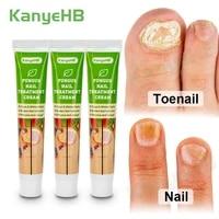 3pcs fungal nail treatment cream feet nail care essence cream toe fungus removal ointment paronychia onychomycosis cream a653