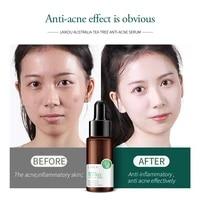 laikou tea tree acne treatment face serum whitening moisturizing oil control anti aging essence anti acne anti scar skin care