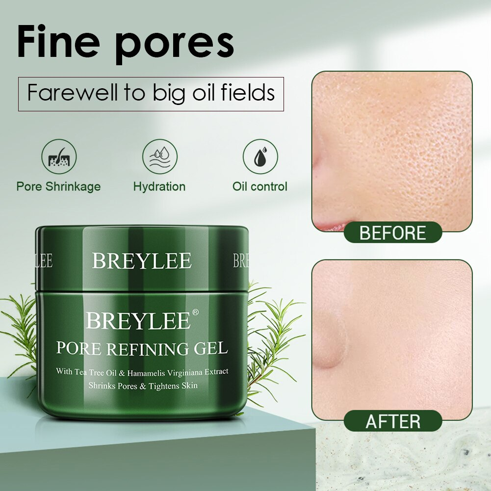 Acne Scar Removal Cream Shrink Pores Pimples Stretch Marks Face Gel Remove Acne Smoothing Whitening Moisturizing Body Skin Care недорого