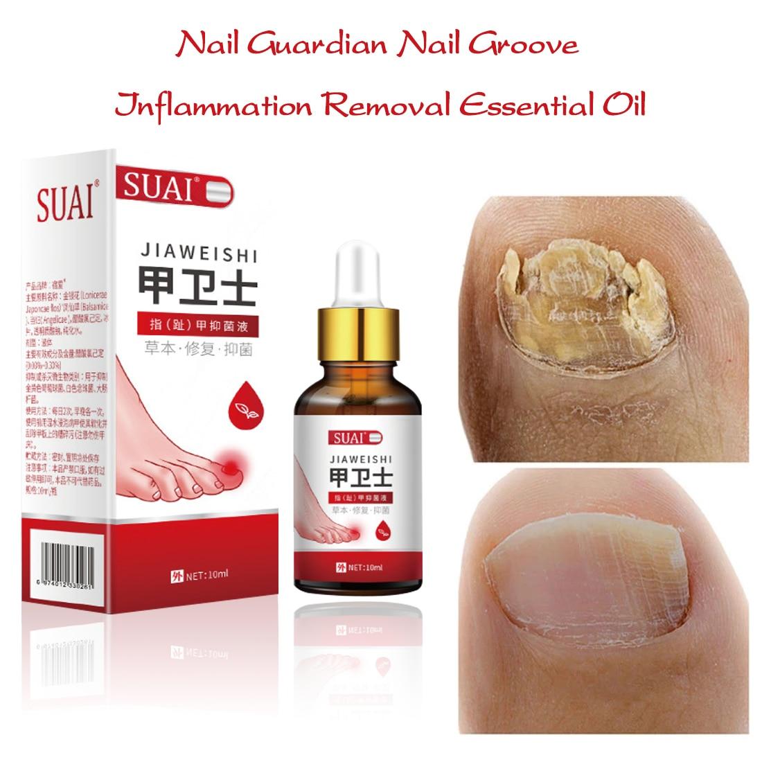 1pcs Nail Fungal Treatment Feet Care Essence Foot Whitening Toe Nail Fungus Removal Gel Anti Infection Paronychia Onychomycosis