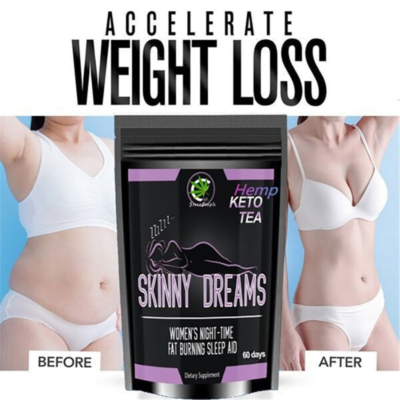 Health Care 10bags Slimming Navel Sticker Slim Patch Lose Weight Loss Burning Fat Slimming Cream