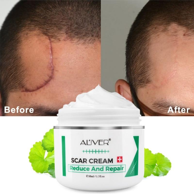 Crema de eliminación de cicatrices efectiva tratamiento avanzado cicatrices faciales y corporales cortes estrías secciones en C cirugías cuidado de la piel