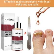 นาฬิกา LANBENA Nail Repair Essence เซรั่มป้องกันเชื้อราเล็บลบ Onychomycosis บำรุงผิวกระจ่างใสมือเท้าเล็บเท้า Care
