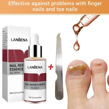 LANBENA Nail Repair Essences Serum Anti Fungal Nail Treatments Remove Onychomycosis Nourishing Brigh
