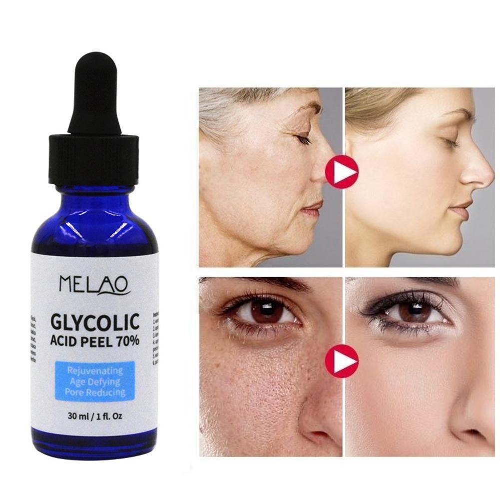 30ml Glycolic Acid Peel Repair Solution Shrink Pores Skin Brighten Improve Color Skin Water Nourishing Acne Balance Oil C0C0 glycolic acid 10