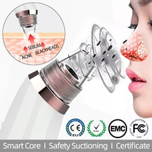 Blackhead Remover Vacuum Hot Compresses Pore Cleaner Suctioning Nose T Zone Acne Sebum Firming Skin