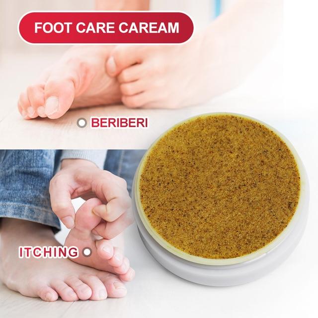 20G Psoriasis Cream Snake Oil Eczema Ointment Pruritus Dermatitis Anti-Itching Medical Plaster Antipruritic Drug Skin Care 2