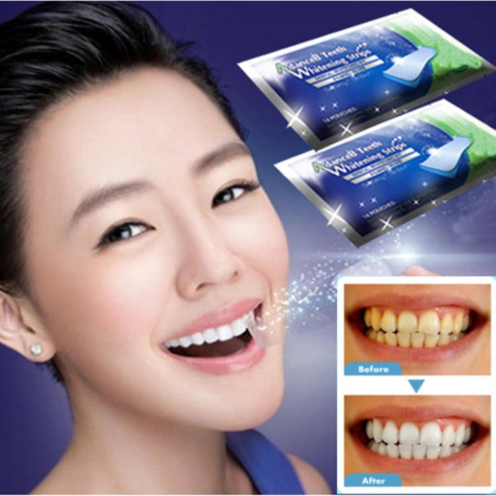 Женские Гелевые полоски для отбеливания зубов, эластичные полоски для отбеливания зубов, виниры для искусственных зубов, инструменты для г...