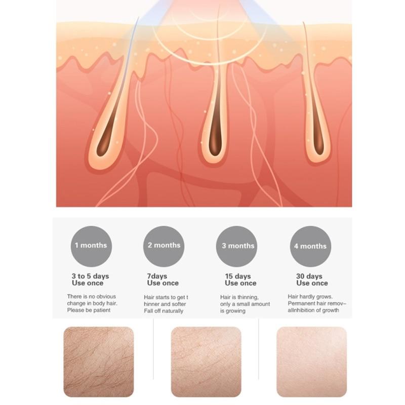 IPL Hair Removal ,500000 Flash Permanent IPL Epilator Hair Removal Facial Photoepilator Painless Hair Remover enlarge