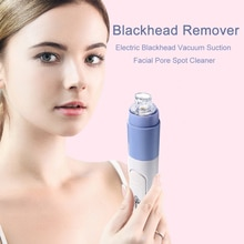 Portable Blackhead Remover Facial Pore Vacuum Extractor Acne Suction Exfoliating Pore Face Cleaner M