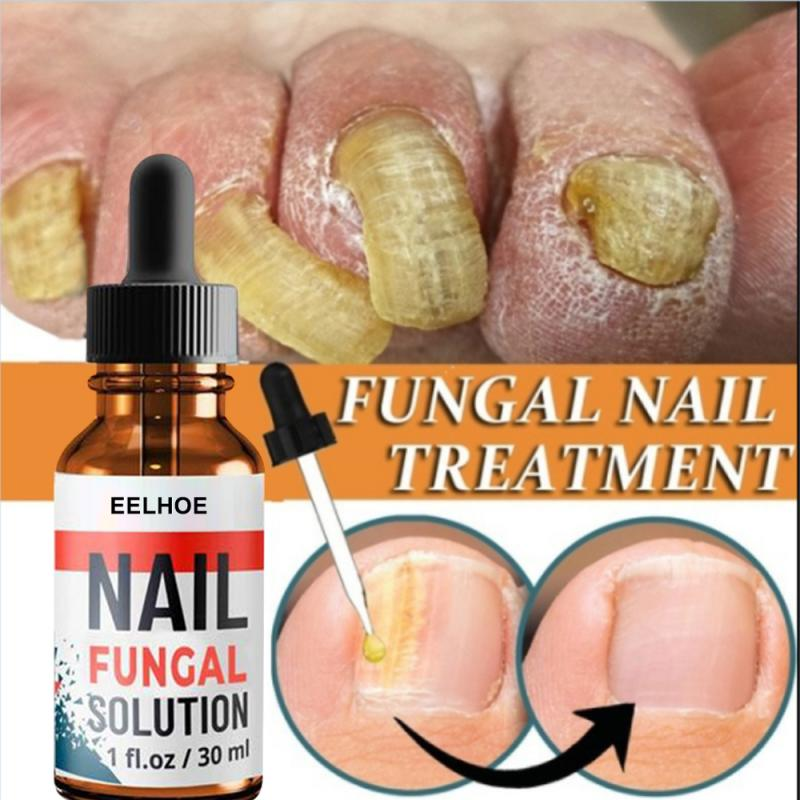 30ml Fungal Nail Repair Essence Serum Care Treatment Foot Nail Fungus Removal Gel Anti Infection Par
