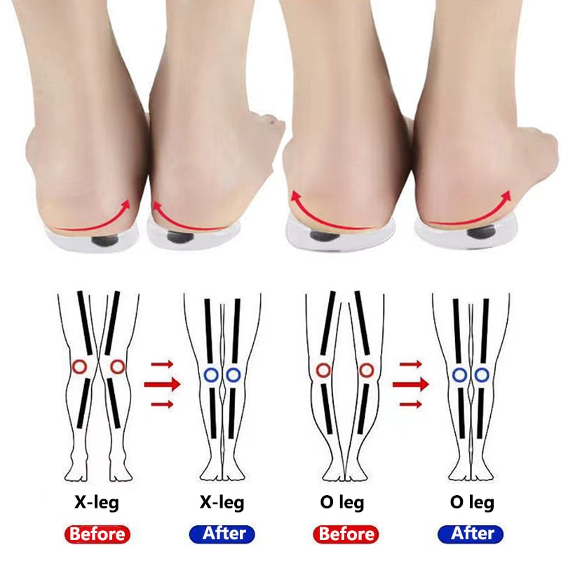 1 Pair Magnet Silicon Orthopedic Insoles Foot Care Tool For Men Women Health Care O/X Type Leg Knee