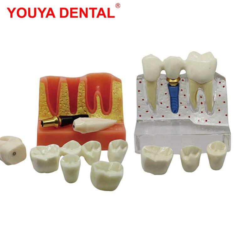 Съемная Стоматологическая модель, модель для обучения зубам, имплантат из смолы, модели для стоматологии, стоматологии, анализа, корона, мос...