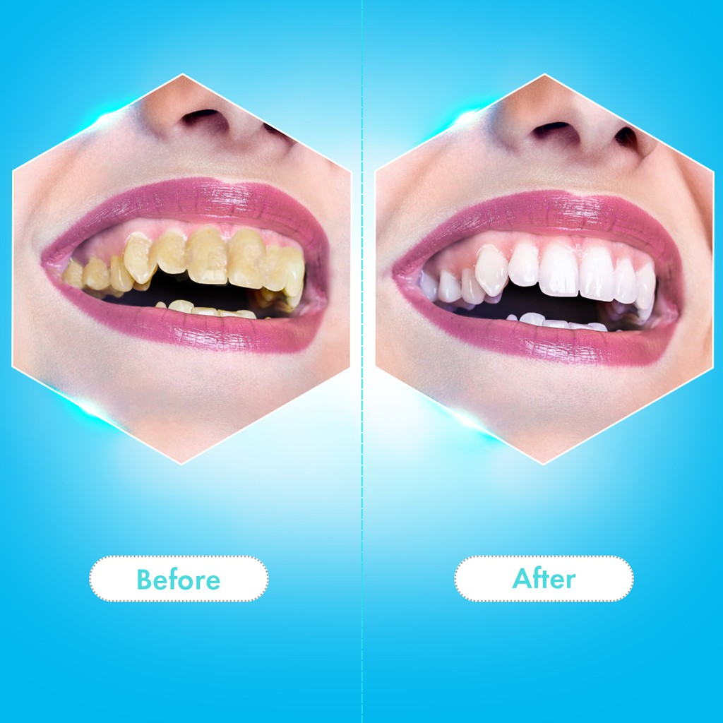 Electric Sonic Dental Scaler Tooth Calculus Remover Tooth Stains Tartar Tool Dentist Whiten Teeth Electric Toothbrush enlarge