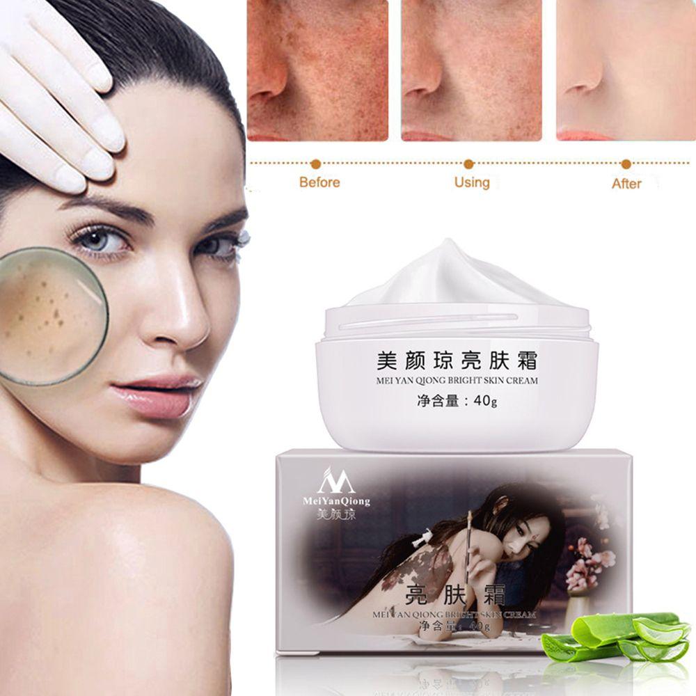 MeiYanQiong-potente crema blanqueadora para pecas, elimina el Melasma, manchas de acné, pigmento de melanina, manchas oscuras, crema para el cuidado de la cara, 40g