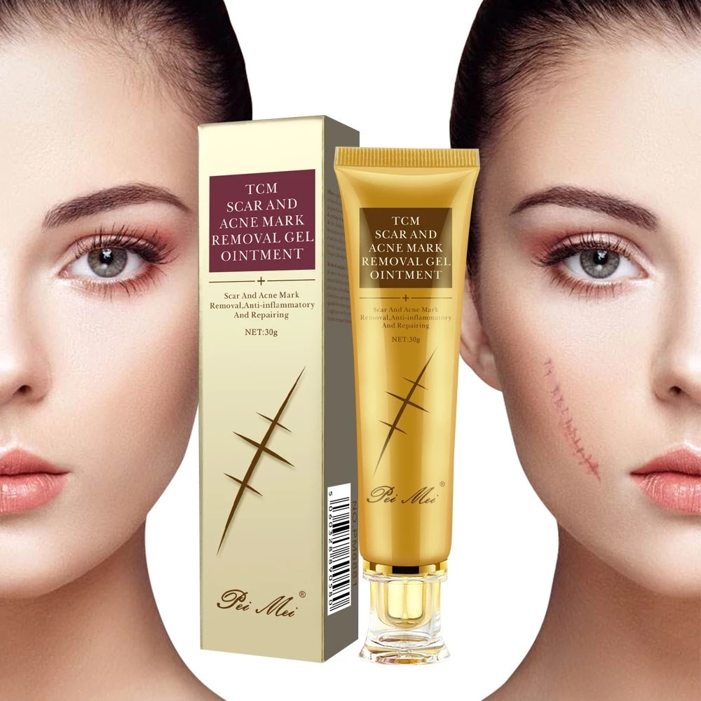 New Arrival Removal Scar Cream Face Pimples Scar Stretch Marks Removal Acne Treatment Whitening Moisturizing Cream Skin Care недорого