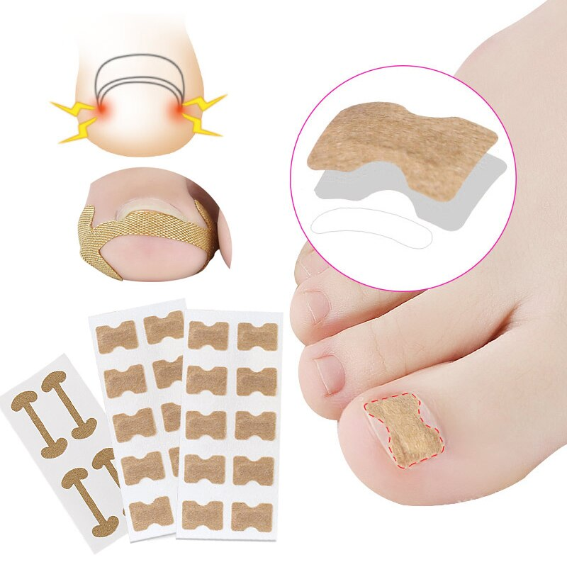 Ingrown Toenail Corrector Nail Correction Sticker Patches Paronychia Treatment Toe Thumb Sticker Corrector Pedicure Toenail Care недорого