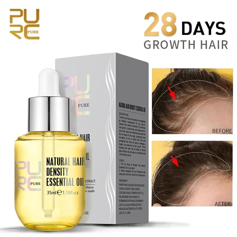 Сыворотка для роста волос PURC, экстракт имбиря для предотвращения выпадения волос, масло для лечения кожи головы, продукты для быстрого рост...