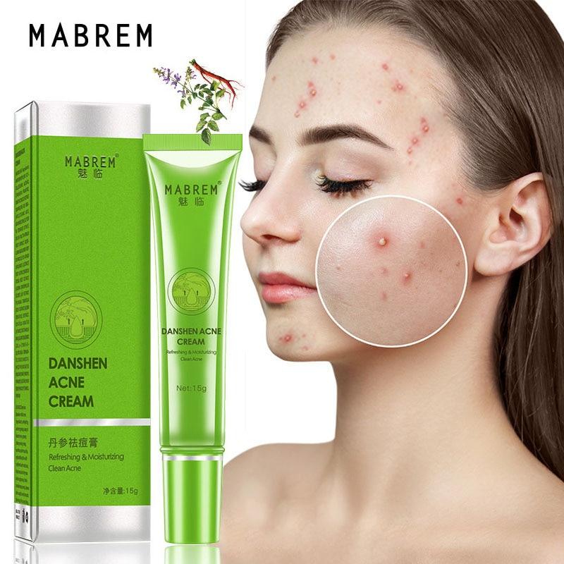 Acne Treatment Cream Serum Acne Removal Fade Acne Spots Oil Control Shrink Pores Whitening Moisturizing Acne Cream Skin Care 15g