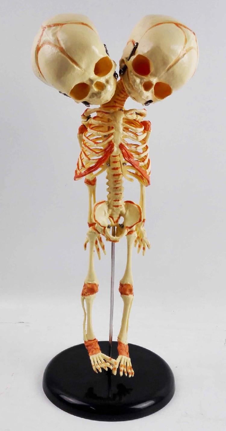 Human New Born Double Head Baby Anatomy Skull Skeleton Anatomical Brain Anatomy Education Model Anatomical Study Display Model