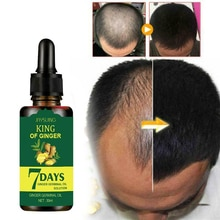30ml 7 Days Hair Growth Oil Essence Ginger Germinal Hair Loss Treatment Serum Strengthen Solid Hair