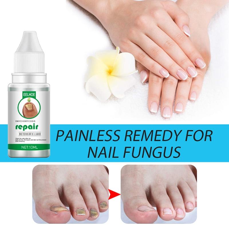 Fungal Nail Repair Essence Serum Anti Nail Fungal Treatment Remove Onychomycosis Nourishing Brighten