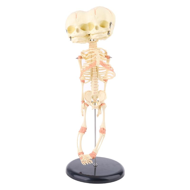 Human Baby Deformed Head Skull Research Model Skeleton Anatomical Brain Anatomy Teaching Study Display human 1 1 right hemisphere functional area anatomy human brain model medicine teaching mdn006