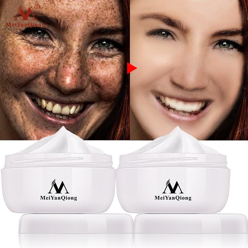 2 pçs meiyanqiong creme de pele brilhante poderoso clareamento creme de sarda remover melasma acne manchas pigmento melanina manchas escuras rosto