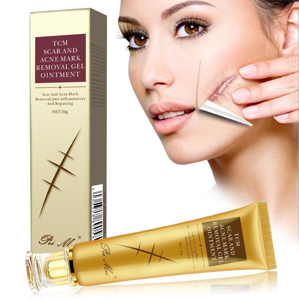 Removal Scar Acne Cream Anti Stretch Marks Gel Repair Acne Spots Skin Smoothing Anti Wrinkle Cream Repair Scars Oil Body Care недорого