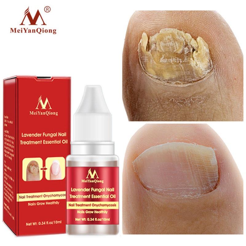Fungal Nail Treatment Serum Onychomycosis Paronychia Anti-Fungal Nail Infection Herbal Toe Fungus Fo
