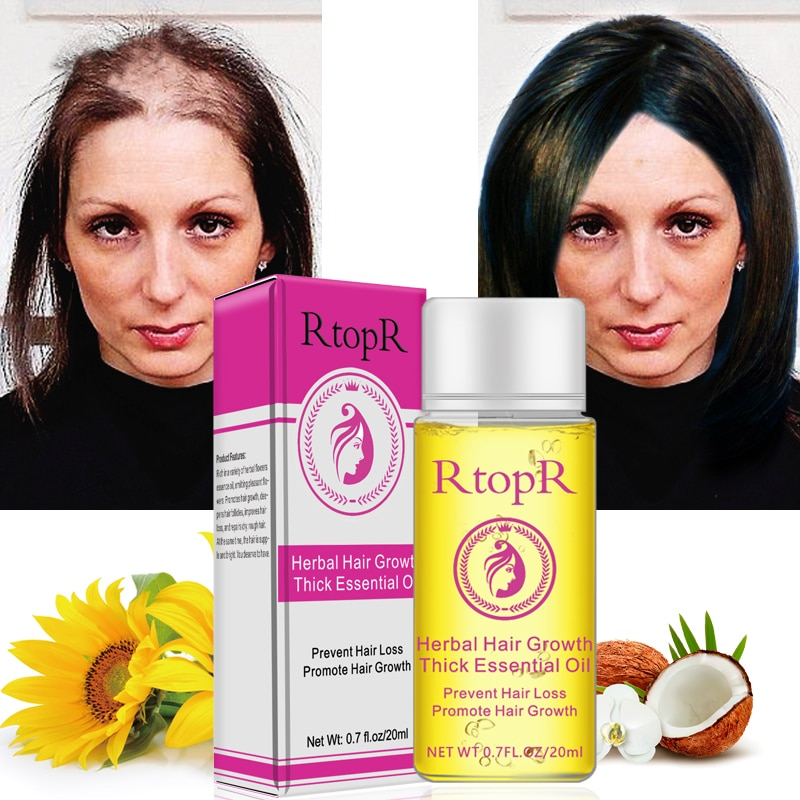 Hot 20ml Herbal Fast Hair Growth Anti Hair Loss Liquid Promote Thick Treatment Essential Oil Hair Care для роста волос