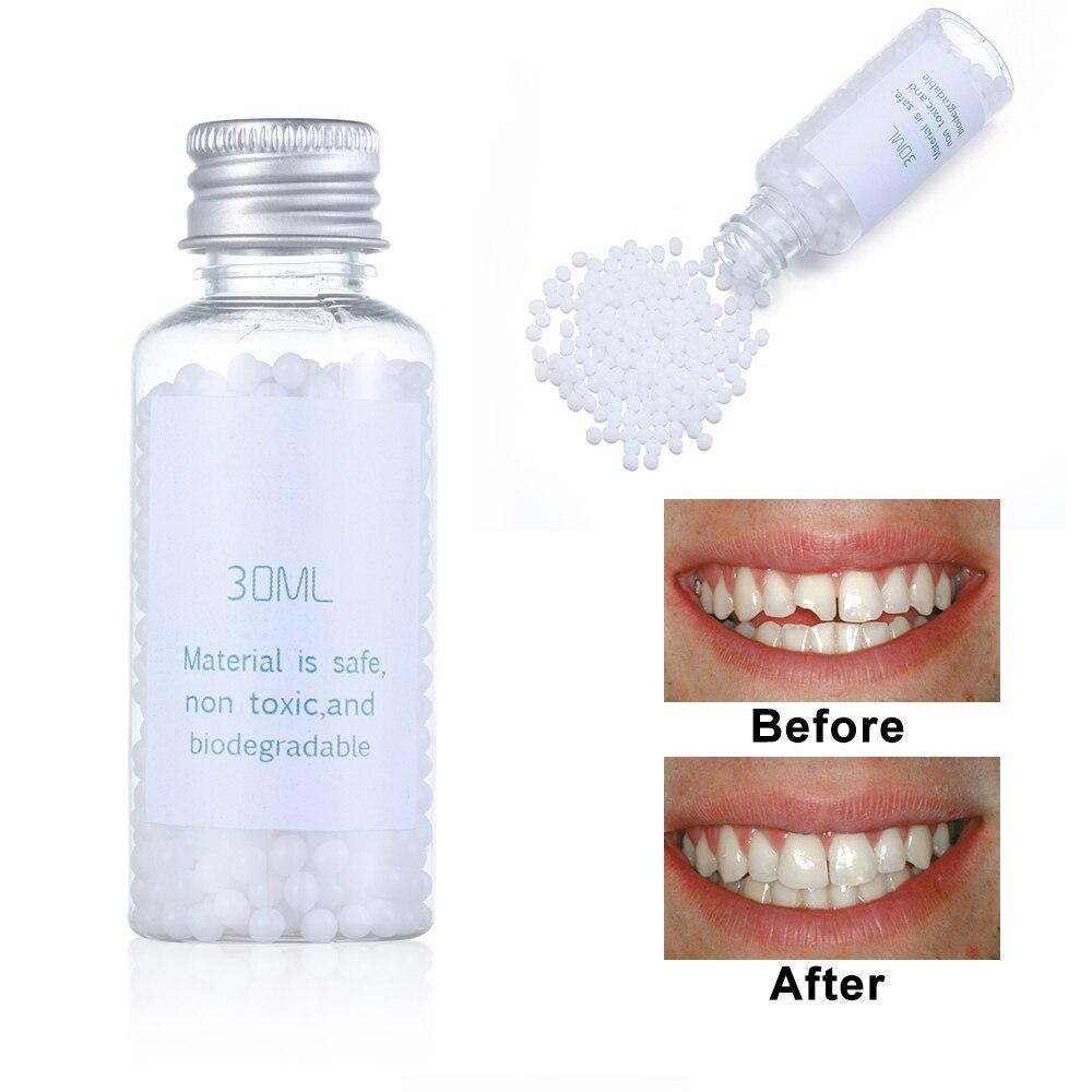 10ml /30ml Solide Prothese Adhesive Kleber Mundhöhle Temporäre Zahn Füllung Feste Material Ersetzen Fehlende Reparatur DIY kit