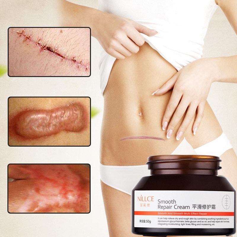 NILLCE Scar Removal Cream Repair Acne scar Cream body care cream Stretch marks Skin Care Moisturizing smooth face cream 50g