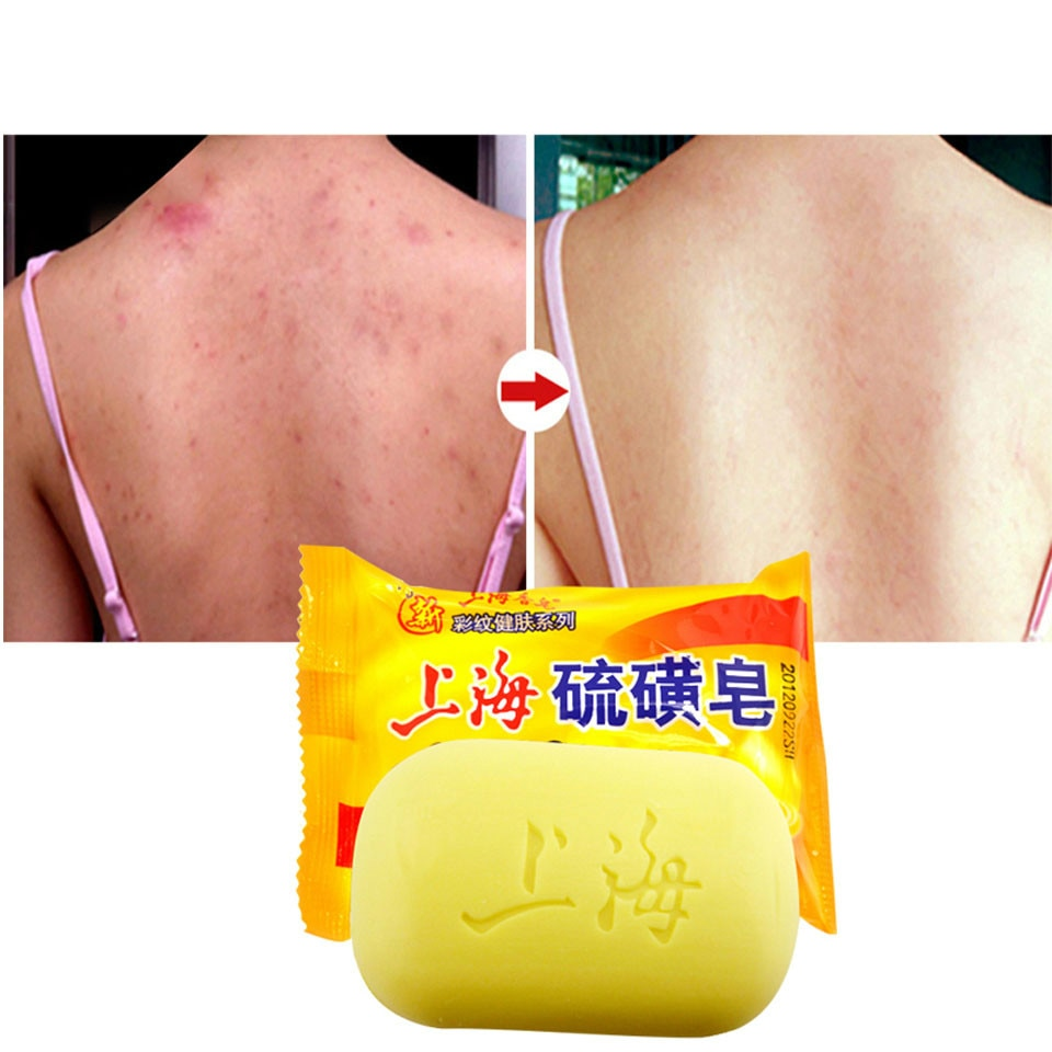 Shanghai Sulfur Soap Acne Treatment Blackhead Remover Soap Whitening Cleanser Oil-control Chinese Traditional Skin Care недорого