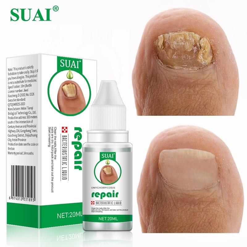 SUAI 20ML Nail Fungal Treatment Feet Care Essence Nail Foot Toe Nail Fungus Removal Gel Anti Infection Paronychia Onychomycosis