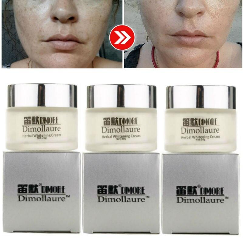 Dimollaure blanqueamiento potente Crema para pecas eliminación de cicatrices Retinol crema facial melasma pigmento melanina manchas de acné manchas de sol