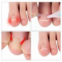 new pedicure tool ingrown nails toenail correction straightening nail clip foot toe treatment elastic brace sticker care pa o6l2