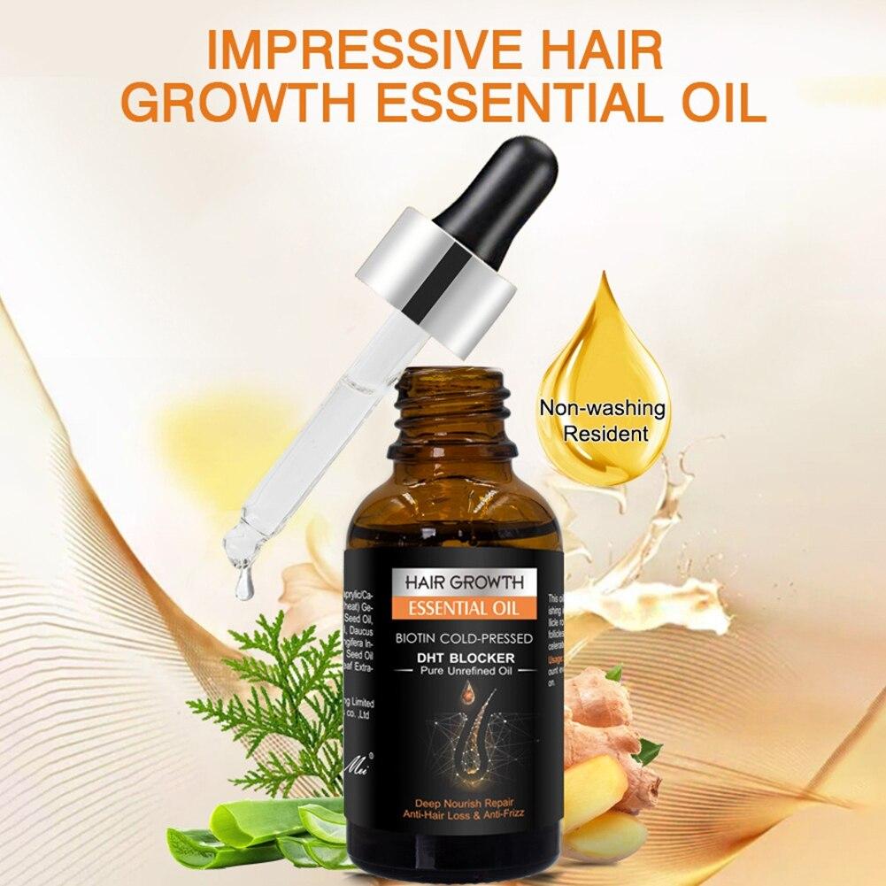 Лечение выпадения волос жидкость здоровье и гигиена Сыворотка для роста густых волос 30 мл имбирь для роста волос эфирное Масла эссенция