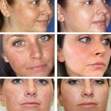 30g Effective Whitening Freckle Cream Remove Melasma Spot Moisturizing Brightening Dark Acne Beauty