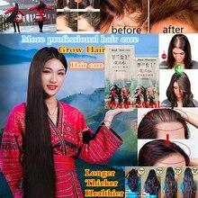 Hair Loss Treatment Essence Fast Hair Growth Shampoo Anti Growth Longer thicker Hair for Men Women N