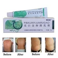 natural herbal skin care antipruritic body psoriasis cream dermatitis eczema pruritus psoriasis body private part skin cream