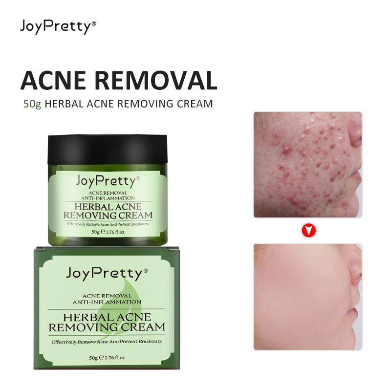 Erbe contro Anti viso Acne brufolo rimozione trattamento crema Patch detergente idratante coreano crema per la cura della pelle del viso cosmetico