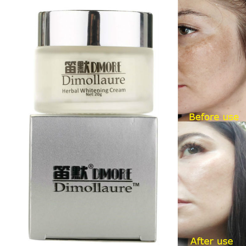 Dimollaure Strong effect whitening cream 20g Retinol Remove Freckle melasma Acne Spots pigment Melanin face care by Dimore