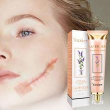 Yoxier Repair Scar Cream Pigmentation Corrector Anti-allergic Marks Care Scar Cream Calm Whitening 2