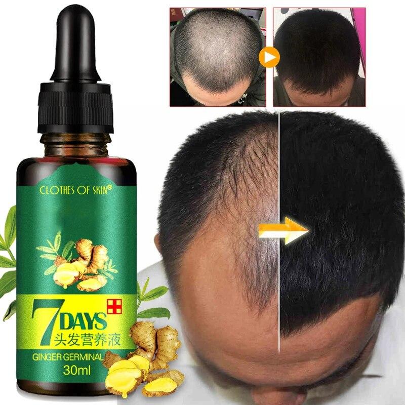 Ginger extract fast hair growth essence essential oil anti-hair loss liquid repair damaged hair trea