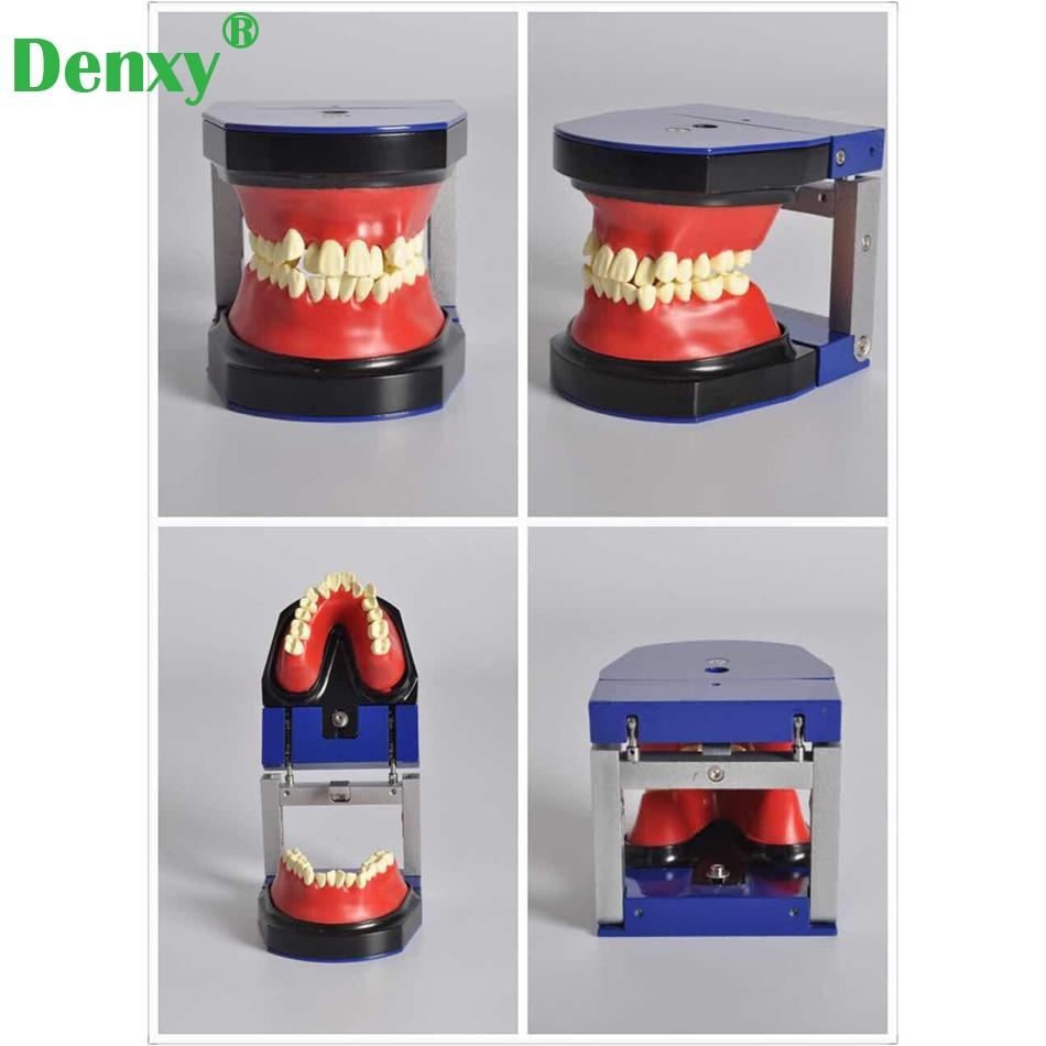 Denxy الأسنان تقويم الأسنان العلاج نموذج Typodont دراسة نموذج لشكل الأسنان معدن السيراميك قوس قوس سلك أنبوبة شدقية روابط الأوعية الدموية