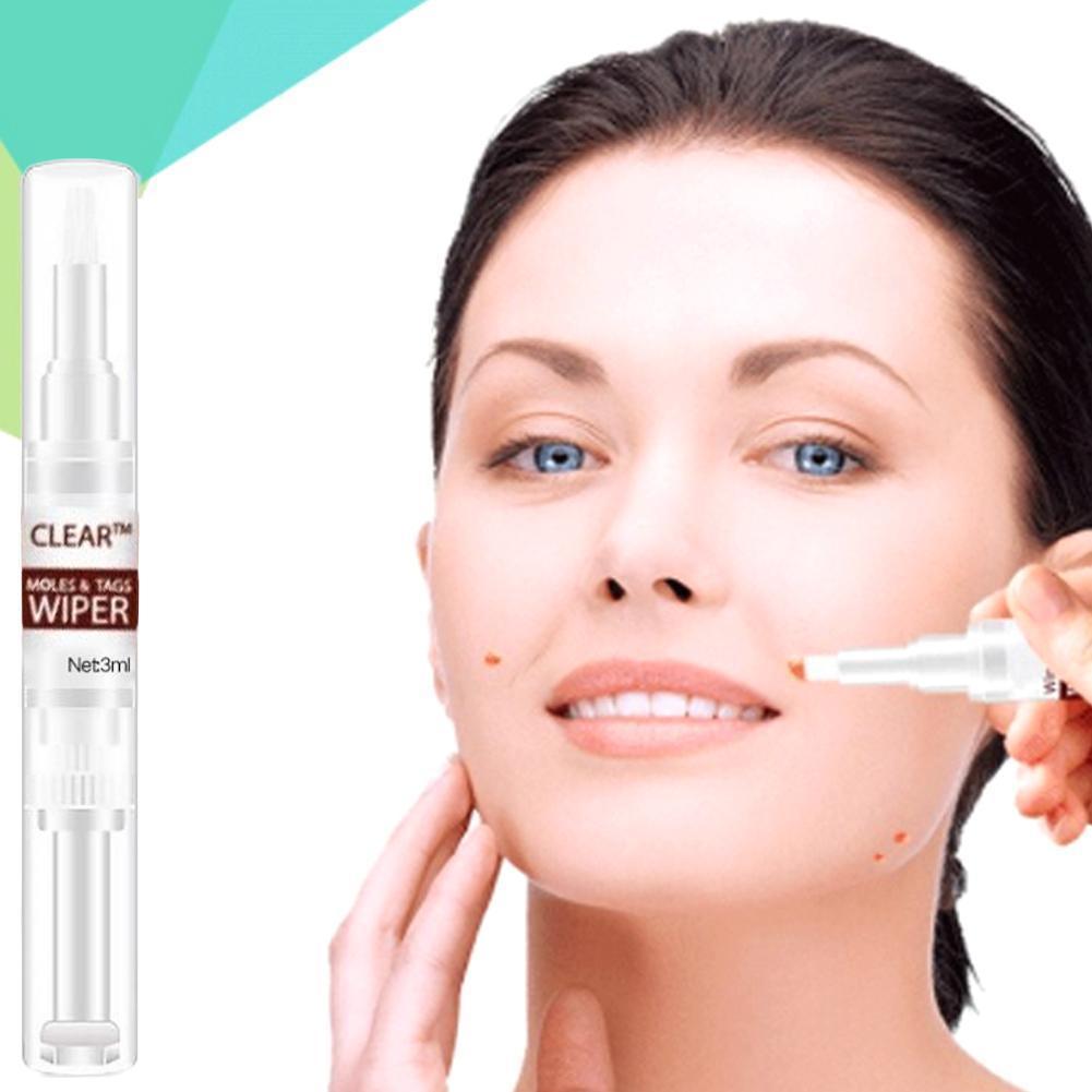 3ml Moles Wart Remover Liquid Pen Removal Genital Warts Treatment Beauty To Wart Pen Skin Care Beaut